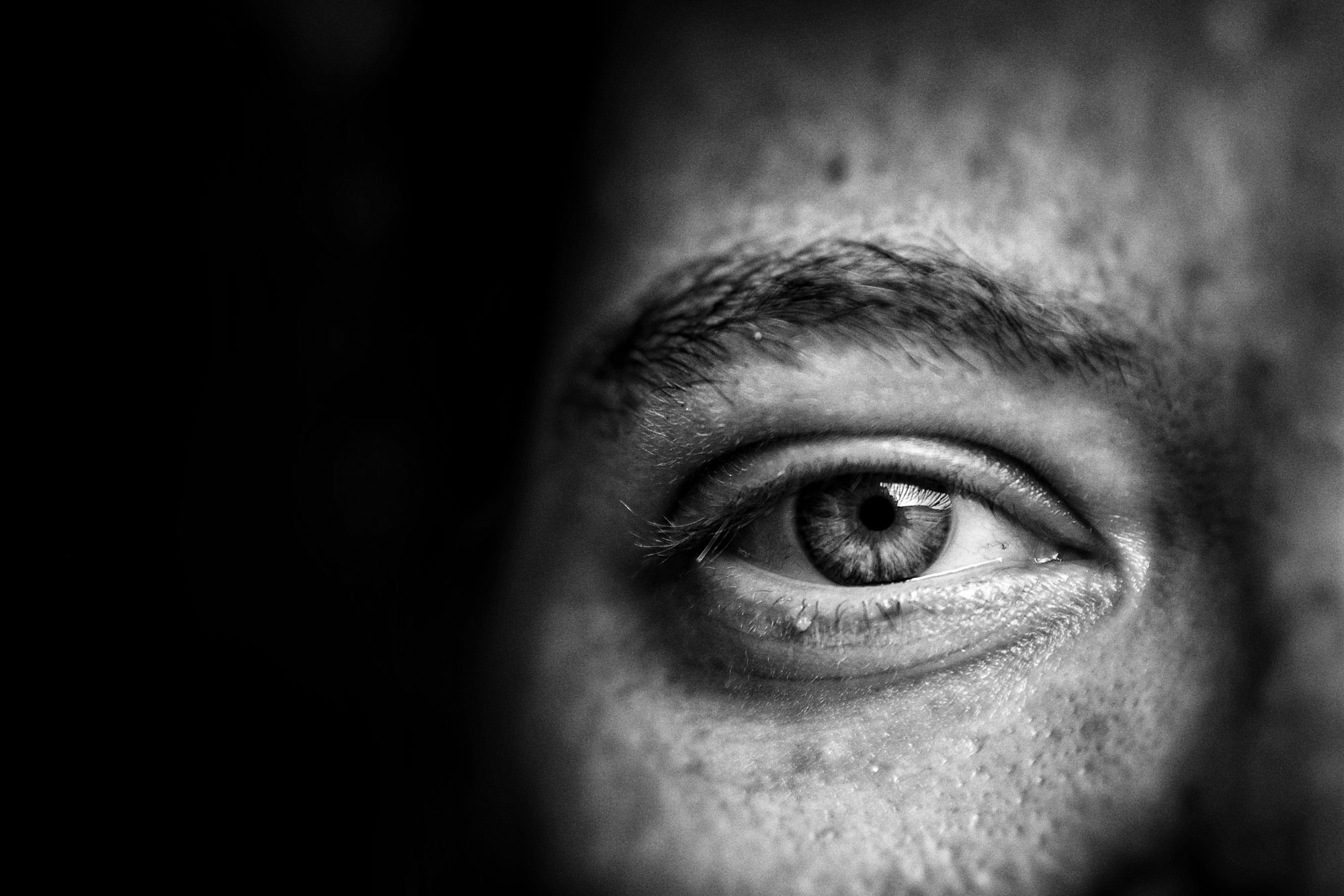 Cómo Evitar Que Avance El Glaucoma