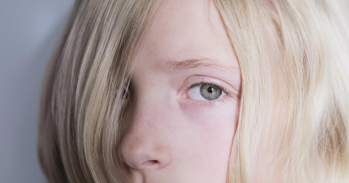 ¿Son Los Ojos Claros Más Sensibles A La Luz?