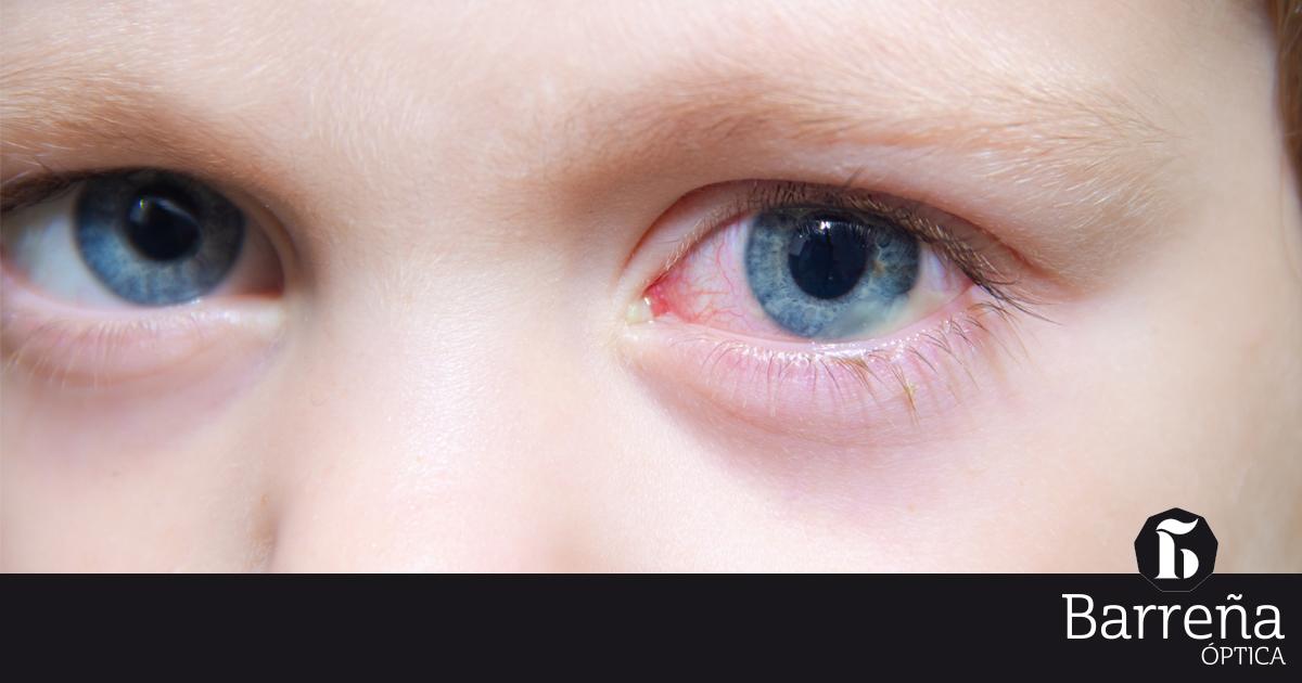 El Picor De Ojos En Primavera