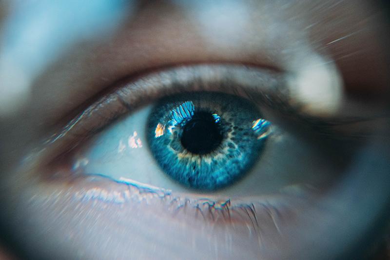 Manchas transparentes en los ojos